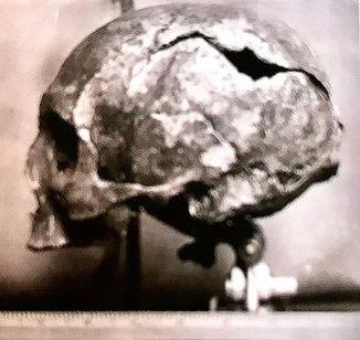 St Magnus' skull